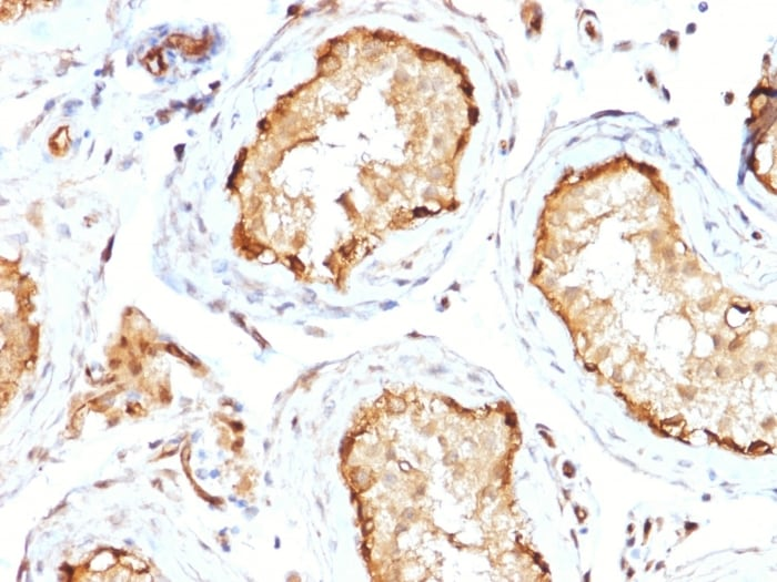 Immunohistochemistry (Formalin/PFA-fixed paraffin-embedded sections) - Anti-RPS23 antibody [CPTC-YWHAE-1] - BSA and Azide free (ab268253)