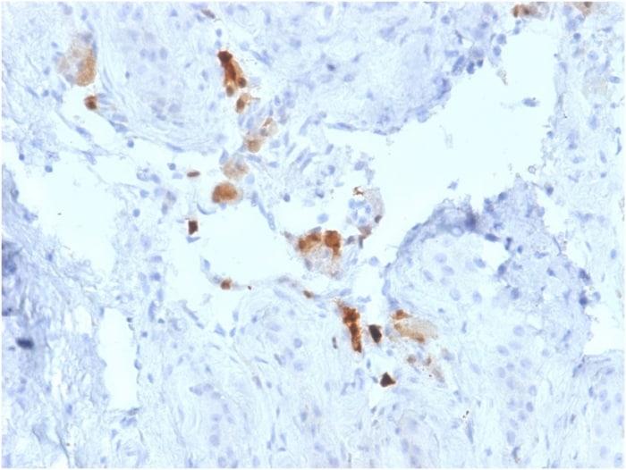 Immunohistochemistry (Formalin/PFA-fixed paraffin-embedded sections) - Anti-Calretinin antibody [CALB2/2786] - BSA and Azide free (ab268260)