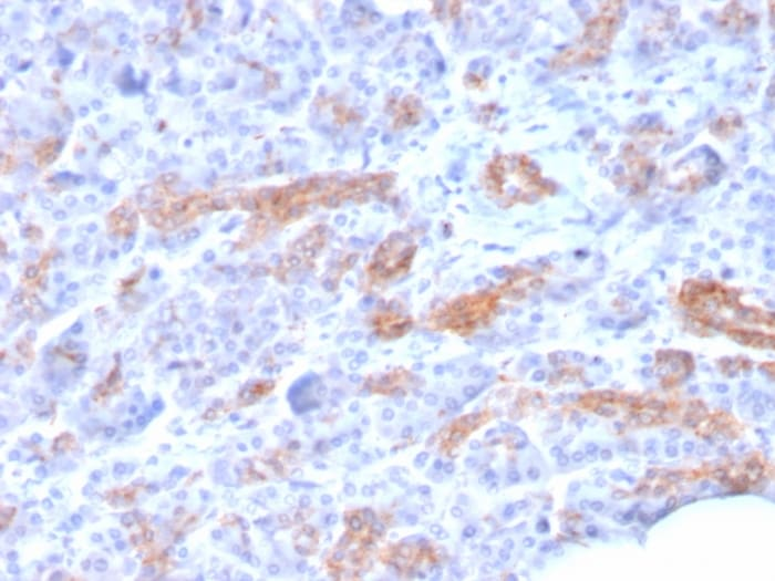Immunohistochemistry (Formalin/PFA-fixed paraffin-embedded sections) - Anti-MRP3 antibody [ABCC3/2971] - BSA and Azide free (ab268263)