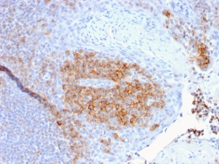 Immunohistochemistry (Formalin/PFA-fixed paraffin-embedded sections) - Anti-CD27 antibody [LPFS2/1611] - BSA and Azide free (ab268268)
