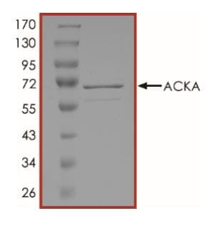 SDS-PAGE - Recombinant Acetate Kinase protein (Tagged) (ab268312)