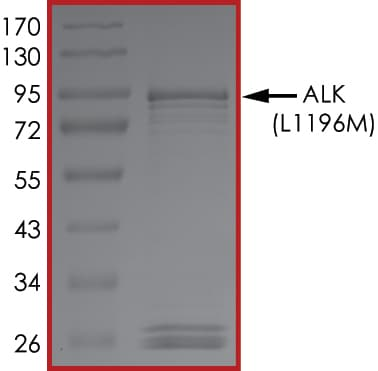 SDS-PAGE - Recombinant ALK (mutated L1196 M) protein (Active) (ab268322)
