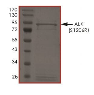 SDS-PAGE - Recombinant ALK (mutated S1206 R) protein (Active) (ab268323)