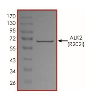 SDS-PAGE - Recombinant Activin Receptor Type IA (mutated R202 I) protein (Active) (ab268329)