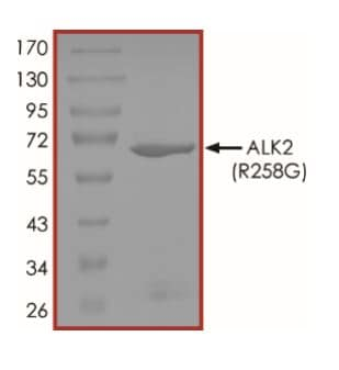 SDS-PAGE - Recombinant Activin Receptor Type IA (mutated R258 G) protein (Active) (ab268330)