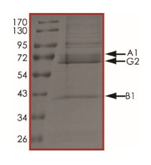SDS-PAGE - Recombinant human AMPK alpha 1 + AMPK beta 1 + PRKAG2 protein (Active) (ab268333)