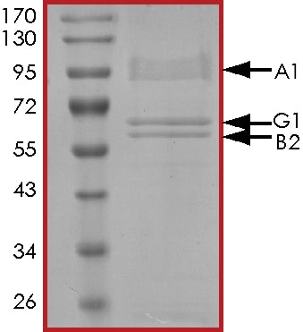 SDS-PAGE - Recombinant human AMPK alpha 1 + AMPK gamma 1 + AMPK beta 2/PRKAB2 protein (Active) (ab268336)