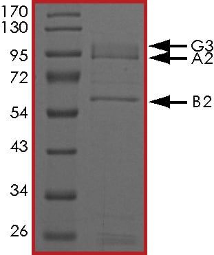 SDS-PAGE - Recombinant Human AMPK alpha 2 + PRKAG3 + AMPK beta 2/PRKAB2 protein (Tagged) (ab268343)