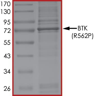 SDS-PAGE - Recombinant Human BTK protein (Tagged-His Tag) (ab268374)