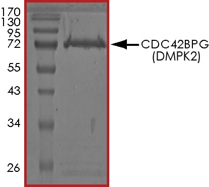 SDS-PAGE - Recombinant human CDC42BPG protein (Active) (ab268391)