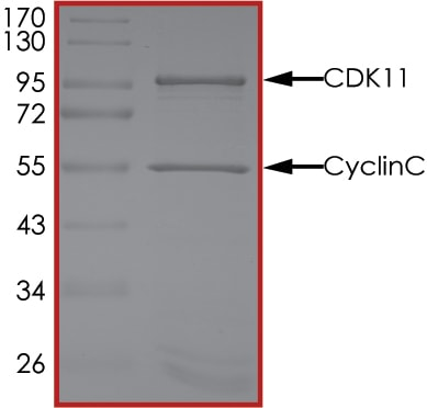 SDS-PAGE - Recombinant Human Cyclin C + CDC2L6 protein (Tagged) (ab268392)