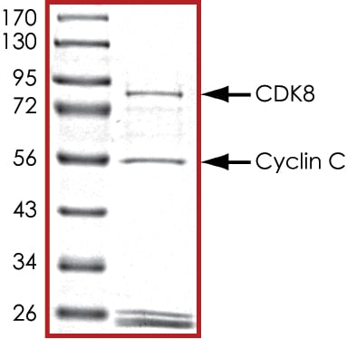 SDS-PAGE - Recombinant Human Cyclin C + Cdk8 protein (Tagged) (ab268400)