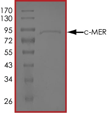 SDS-PAGE - Recombinant mouse MERTK protein (Active) (ab268424)