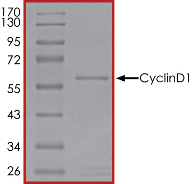SDS-PAGE - Recombinant Human Cyclin D1 protein (Tagged) (ab268435)