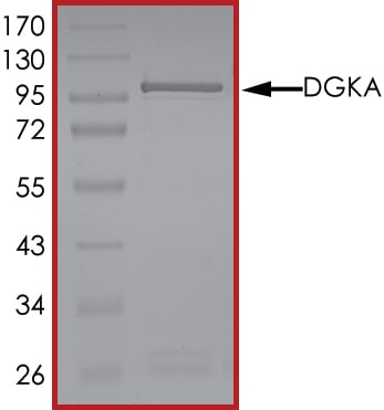 SDS-PAGE - Recombinant human DGKA protein (Active) (ab268440)