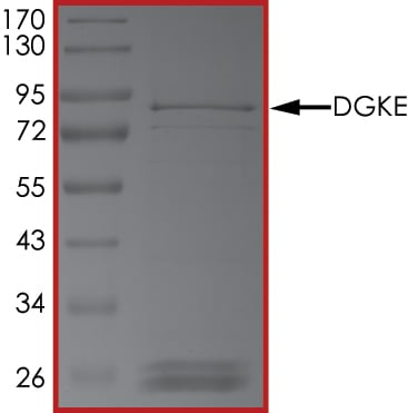 SDS-PAGE - Recombinant human DGKE protein (Active) (ab268443)