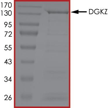 SDS-PAGE - Recombinant human DGKZ/DGK-zeta protein (Active) (ab268445)