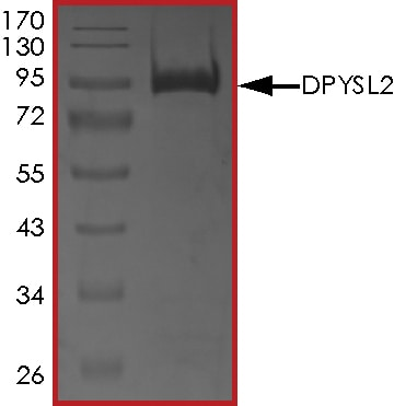 SDS-PAGE - Recombinant Human CRMP2 protein (Tagged) (ab268449)