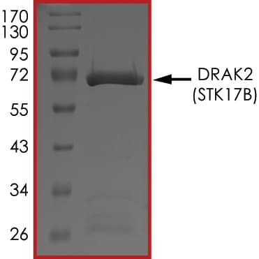 SDS-PAGE - Recombinant human DRAK2 protein (Active) (ab268450)