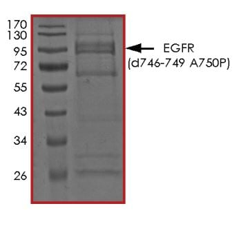 SDS-PAGE - Recombinant EGFR deletion 747-749 (mutated A750 P) protein (Active) (ab268472)