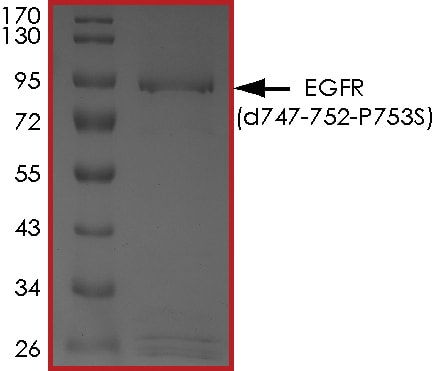 SDS-PAGE - Recombinant EGFR (mutated P753 S & del747-752) protein (Active) (ab268473)