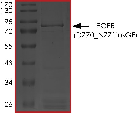SDS-PAGE - Recombinant Human EGFR protein (D770_N771insGF) (Tagged) (ab268477)