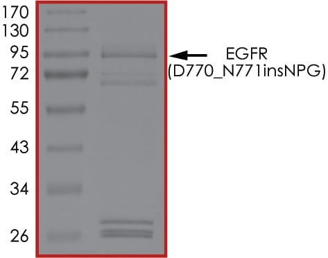 SDS-PAGE - Recombinant human EGFR (D770_N771insNPG) protein (Active) (ab268479)