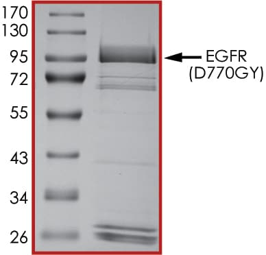 SDS-PAGE - Recombinant human EGFR (mutated D770 G + D770 Y) protein (Active) (ab268480)