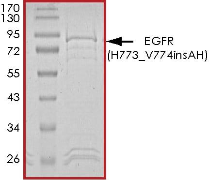 SDS-PAGE - Recombinant human EGFR (H773_V774insAH) protein (ab268484)