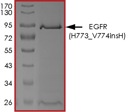 SDS-PAGE - Recombinant human EGFR (H773_V774insH) protein (ab268485)
