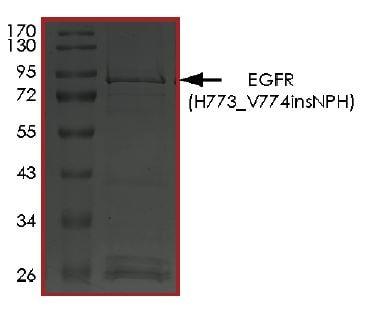 SDS-PAGE -  (ab268486)