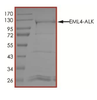 SDS-PAGE - Recombinant ALK + EML4 protein (ab268525)