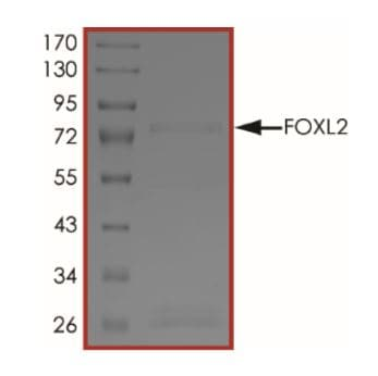 SDS-PAGE - Recombinant Human FOXL2 protein (Tagged) (ab268588)