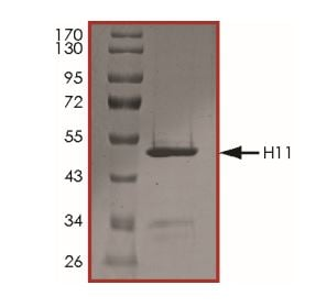 SDS-PAGE - Recombinant Human Hsp22/HSPB8 protein (Tagged) (ab268608)