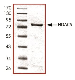 SDS-PAGE - Recombinant mouse HDAC5 protein (Active) (ab268615)