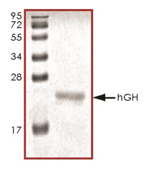SDS-PAGE - Recombinant human Growth Hormone protein (ab268636)