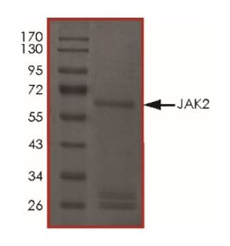 Sanger Sequencing - Recombinant human JAK2 protein (ab268691)
