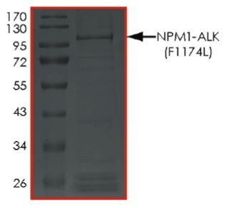 SDS-PAGE - Recombinant human ALK (mutated F1174 L) + Nucleophosmin protein (Tagged) (ab268819)