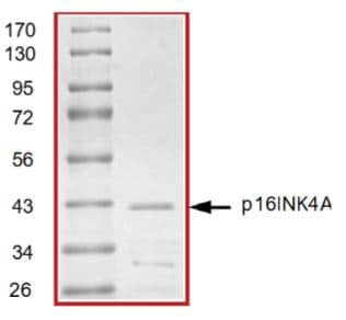 SDS-PAGE - Recombinant Human CDKN2A/p16INK4a protein (ab268831)