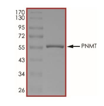 SDS-PAGE - Recombinant human PNMT protein (ab268878)