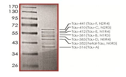 SDS-PAGE - Recombinant Human Tau protein (ab268989)