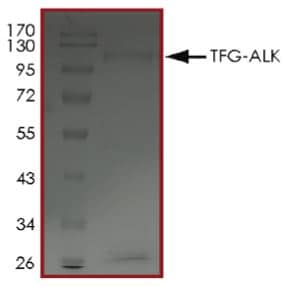 SDS-PAGE - Recombinant human ALK + TRK fused gene protein (Tagged) (ab269037)