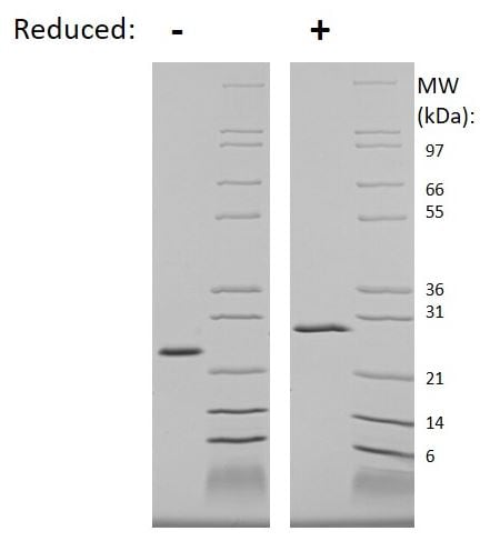 SDS-PAGE - Recombinant Human WISP2 protein (ab269159)