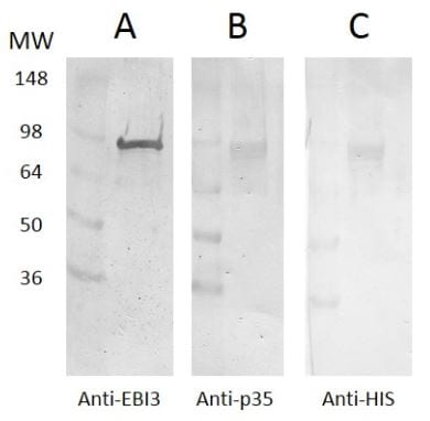 Western blot - Recombinant Human IL35 protein (ab269221)