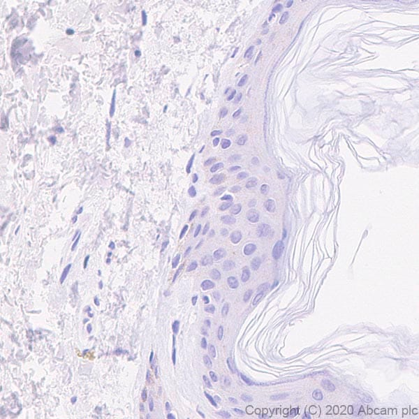 Immunohistochemistry (Formalin/PFA-fixed paraffin-embedded sections) - Anti-IL36 alpha/IL-1F6 antibody [EPR23089-87] (ab269271)
