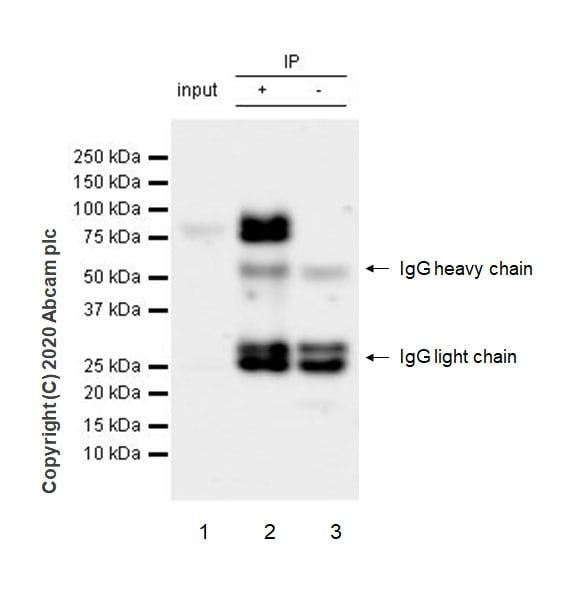 Immunoprecipitation - Anti-TGF beta Receptor II antibody [EPR23148-21] (ab269279)