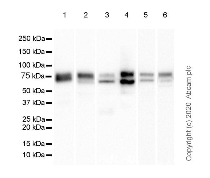 Western blot - Anti-TGF beta Receptor II antibody [EPR23148-21] (ab269279)