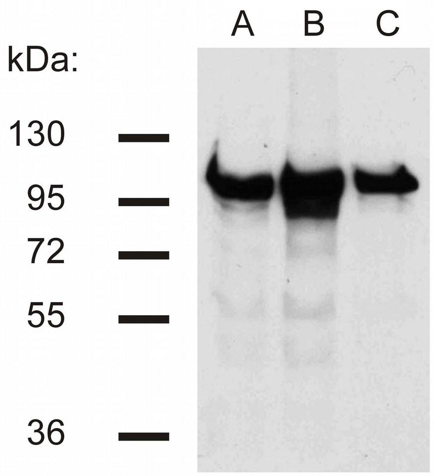 Western blot - Anti-beta Catenin antibody [EM-22] (ab269364)