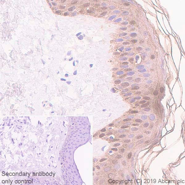 Immunohistochemistry (Formalin/PFA-fixed paraffin-embedded sections) - Anti-SerpinB2/PAI-2 antibody [EPR22924-56] - BSA and Azide free (ab269368)