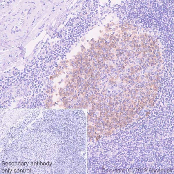 Immunohistochemistry (Formalin/PFA-fixed paraffin-embedded sections) - Anti-AICDA antibody [EPR23436-45] - BSA and Azide free (ab269457)